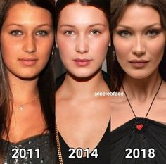 Welcome to A to Z plastic surgery! Plastic Surgery Photos, Celebrity Plastic Surgery, Facial Fillers, Fox Eyes, Bella Hadid Outfits, Bella Hadid Hair, Tumbrl Girls, Celebrities Before And After, Cosmetic Procedures