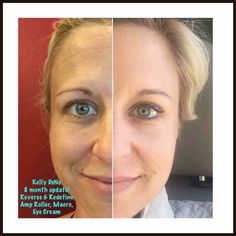 Look at Kelly's 8 month results using Rodan+Fields!  These products are the real deal! Who's ready to get started today??  Enroll as a Preferred Customer from now until Tuesday 5/31/16 (you get 10% off and FREE shipping!!!) and will  throw in a FREE gift with a Preferred Customer purchase valued at $24!  You have nothing to lose with our 60 day, empty bottle, money back guarantee!!