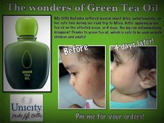 To order sms /whatsapp +65 9749-2382 or email to sean.shawket@gmail.com #Unicity #greenteaoil #shamunicity