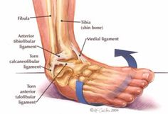 "most common injury reported with a ""twisted ankle"" is a sprain to the lateral ligaments of the ankle (the ones on the outside as opposed to the inside [medial]) Description from myphysiocare. I searched for this on /images Ankle Anatomy, Foot Anatomy, Ankle Ligaments, Muscle Atrophy, Foot Remedies, Natural Remedies, Ankle Pain, Medical Anatomy, Med School"
