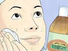 Acne No More Book: Unique Holistic Acne System Guaranteed To Cure the ROOT Cause Of Your Acne Naturally and Permanently.Giving You LASTING Acne-Free Skin. Home remedy and natural acne treatment to cure pimples, zits, acne, blackheads. Scar Remedies, Natural Acne Remedies, Pimples Remedies, Beauty And More, Beauty Tips, Hair Beauty, Back Acne Treatment, Acne Scar Removal, Hormonal Acne