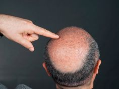 Things you need to know before hair transplant surgery.  #HairTranspalnt #HairTransplantSurgery