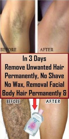 remove unwanted hair permanently/remove unwanted hair/remove unwanted hair with vaseline/remove unwanted hair naturally/remove unwanted hair permanently bikinis/Remove Unwanted Hair/ #ChestHairRemoval #UnwantedHairRemovalForBaby #HairRemovalCost #UnwantedHairRemovalForFemale #BackHairRemoval Underarm Hair Removal, Chin Hair Removal, Upper Lip Hair Removal, Hair Removal Spray, At Home Hair Removal, Hair Removal Machine, Laser Hair Removal, Permanent Facial Hair Removal, Remove Unwanted Facial Hair