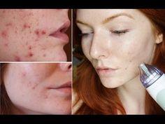PMD Progress Update @ 4 Months, Q & A (Before & After PICS) after 4 months