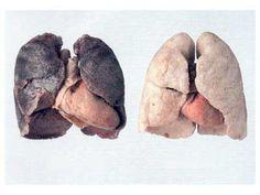 Tabac : Comment nettoyer ses poumons naturellement ?