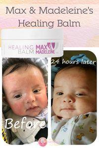 healing balm, Max &