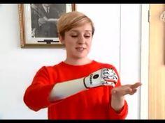 bionic hand: UK user receives 'world's most lifelike' bionic hand