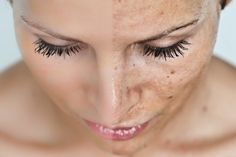Home Remedies for Dark Spots, Melasma, Age Spots on Skin and Face Dark Spots Under Eyes, Spots On Legs, Dark Spots On Face, Brown Spots, Age Spot Remedies, Get Rid Of Sunburn, Age Spot Removal, Mole Removal, Sun Damaged Skin