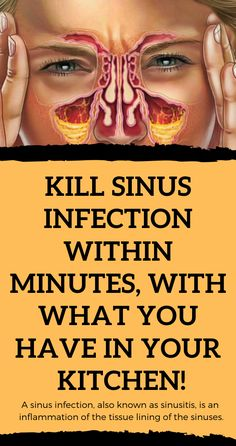 A sinus infection, also known as sinusitis, is an inflammation of the tissue lining of the sinuses. Healthy sinuses are filled with air, but when blocked, germs can grow within and cause an infection. Natural Oil, Natural Foods, Natural Products, Natural Beauty, Natural Healing, Natural Home Remedies, Herbal Remedies, Cold Remedies, Holistic Remedies