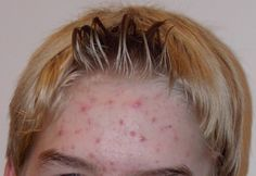 Natural Home Remedies for Acne The best acne treatment theacnecode.com