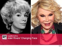 Joan Rivers Before Plastic Surgery joan rivers before and after plastic surgery pictures celebrity