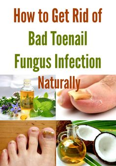 How to Get Rid of Bad Toenail Fungus Infection Naturally