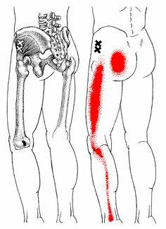Yoganatomy Sit Bone Pain... Not Always Hamstrings - Yoga Anatomy