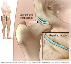 labral tear hip | Hip labral tears are more common in people who play certain sports or ...