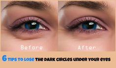 6 Tips to Get Rid of the Dark Circle Under Your Eyes