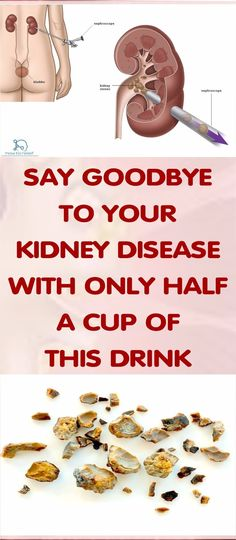 Do you know this Drink That will help you get Rid of Kidney Disease, If not Check and Read This Article !