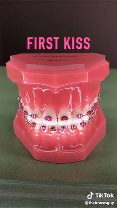 Dental Braces, Teeth Braces, Best Braid Styles, Cute Braces Colors, Braces Tips, Getting Braces, Best Amazon Buys, Brace Face, Health And Beauty Tips
