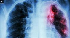 Pulmonary fibrosis is a fatal disease. But here are some natural remedies to cure pulmonary fibrosis and reverse its effects. Lung Cleanse, Health Cleanse, Lung Detox, Liver Detox, Pulmonary Fibrosis, Cystic Fibrosis, Fitness Workouts, Fitness Hacks, Health Benefits