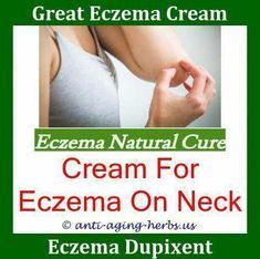 Aquaponics Grow Bed ID:4650058895 #NummularEczema Eczema On Hands, Nummular Eczema, Get Rid Of Eczema, Snoring Remedies, Psoriasis Remedies, Medicine For Eczema, Diet