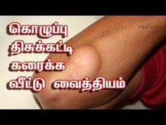Aazhiya: Lipoma Treatment in Tamil
