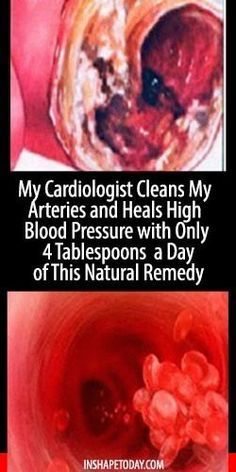 My Cardiologist Cleans My Arteries and Heals High Blood Pressure with Only 4 Tablespoons a Day of This Natural Remedy - InShapeToday
