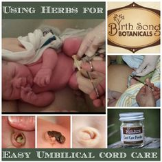 UMBILICAL CORD CARE- Cutting the cord is such a momentous occasion that it's become a metaphor for a transition into independence. But after the ceremonial cut is over and the beautiful moment has passed, what you're left with is anything but beautiful. Umbilical cord care can be annoying at best and an infection risk at worst.  Learn here how to use herbs to help the cord stump heal better, faster, and safer.