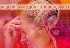Очищение сосудов головного мозга: 5 лучших народных средств!