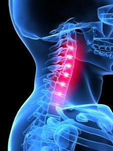 River Falls Chiropractic, Inc. - Chiropractic Care in River Falls, WI Upper Cervical Chiropractic, Vértebra Cervical, Chiropractic Care, Neck Pain Treatment, Spinal Decompression, Neck Injury, Injury Report, Neck And Back Pain, Muscle Tension