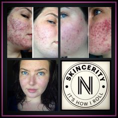 Before & after using Skincerity. This is AMAZING! Took a bit of time but look at the difference! Acne Solutions, Chemical Peel, Homemade Skin Care, How To Treat Acne, Acne Scars, Skin Problems, Acne Treatment, Anti Aging Skin Care