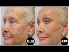 Απίστευτα όμορφο ! εφαρμόστε το μία φορά και δεν θα βλέπετε πλέον τις ρυτίδες στο πρόσωπό σας! - YouTube Boring Day, Les Rides, Youtube, Tips Belleza, Facial Masks, Anti Wrinkle, Pretty Hairstyles, Home Remedies, Body Care