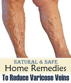 8 Natural and Safe Home Remedies for Varicose Veins..