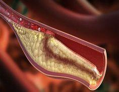 A nőknek a visszértágulat jelenti a XXI. század pestisét! A visszerektől szenvedő emberek 57%-a 10 éven belül vérrög vagy rák miatt hal meg! Interjú az Érkezelési Magáncentrum egyik szakorvosával! Green Tips, Varicose Veins, Blood, Kitten Heels, Cancer, Women, Reduce Cholesterol, Fat, Whitening Clothes