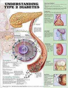 Understanding Type 2 Diabetes anatomy poster lists symptoms, risk factors, ways to control diabetes type 2, showing glucose molecules and cell.