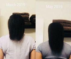 Organic Hair Growth and Anti Hair Loss Oil   30 Ml For Men & Women #TcBeauty Oil For Hair Loss, Anti Hair Loss, Cypress Oil, Cedarwood Oil, Hair Growth Oil, Body Heat, Hair Conditioner, Hair Oil, Natural Oils