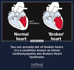 You can actually die of broken heart. Its a condition known as  - FactFeed