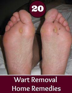 20 Wart Removal Home Remedies | Health Villas