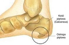 Ostroga piętowa jest to zmiana zwyrodnieniowa okolic guza piętowego kości piętowej skutkująca naroślą kostną i stanem zapalnym. Jak sobie z nią radzić?