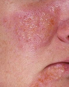 Recurring facial rash
