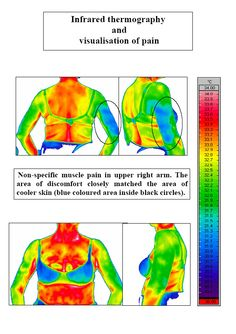 Infrared Thermography & Visualisation of Pain