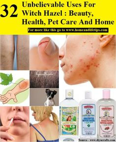 32 Unbelievable Uses For Witch Hazel Beauty, Health, Pet Care And Home