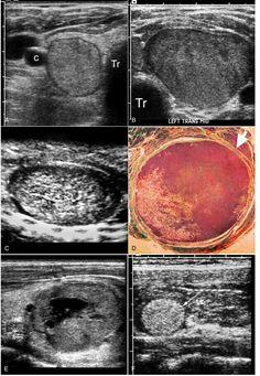 Cancer Types, Types Of Cancers, Thyroid Cancer, Thyroid Gland, Thyroid Ultrasound, Carotid Artery, Image Shows, Spectrum, Arrow