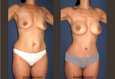 Mommy Makeover - Breast Implants & Tummy Tuck