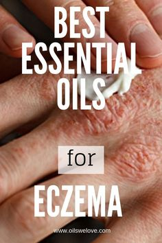 40 Natural Eczema Treatments & Remedies What to go natural in curing your eczema? Try these essential oils that have great anti-bacterial and soothing effects. How to use essential oils for eczema. Home Remedies For Eczema, Oils For Eczema, Psoriasis Remedies, Oils For Skin, Natural Remedy For Eczema, Natural Remedies, Essential Oils For Exzema, Best Essential Oils, Home Remedies