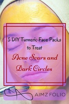 Dark circles and acne scars are the worst skin problems that each of us face at least once in life. The problem is acne scars and dark circles are also the toughest to fight. A lot of remedies and DIYs are floating aroun 5 DIY Turmericd the internet to ge Remedies For Tooth Ache, Home Remedies For Skin, Natural Remedies, Turmeric Face Pack, Witch Hazel For Skin, Pimples Remedies, Acne Solutions, Acne Scar Removal, How To Apply Mascara