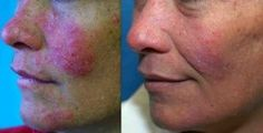 Learn how to handle rosascea skin problems.
