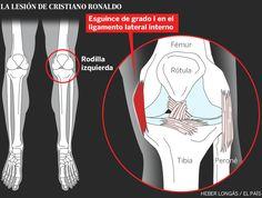 Lesión de rodilla de Cristiano Ronaldo: esguince de ligamento latera interno