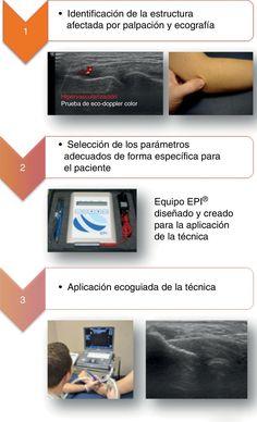 Aplicación ecoguiada de EPI® sobre tendón de la musculatura epicondílea.