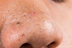 ¿Acabas de notar algunas espinillas en tu piel? Te compartimos algunos ingredientes naturales para combatirlas en casa ¡Pruébalos!