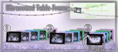 Ultrasound Table Frames by DevoidCreations