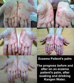 The Benefits of Drinking Ionized Alkaline Water kangen water testimonials eczema